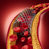 France Coronary Stents Market Overview